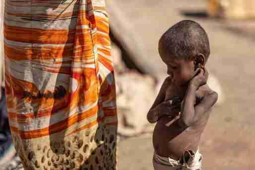 madagascar famine climate change child malnutrition